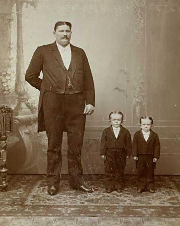 Photo of Sfortunatamente i bambini ereditarono i capelli dal padre e l'altezza dalla madre